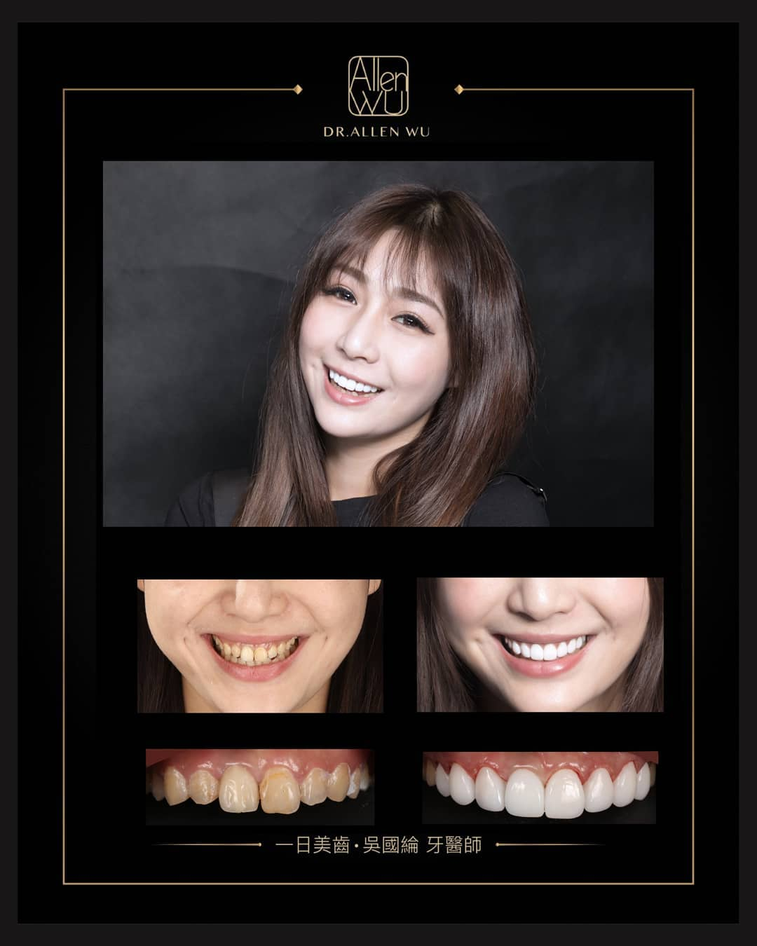 DSD數位微笑設計-推薦案例-1-吳國綸醫師-台中