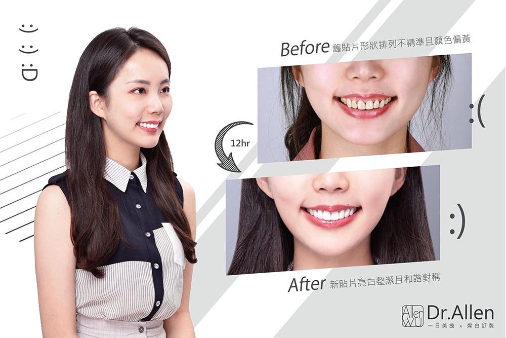 瓷牙貼片-牙齒貼片舊換新-陶瓷貼片前後比較-吳國綸醫師-台中