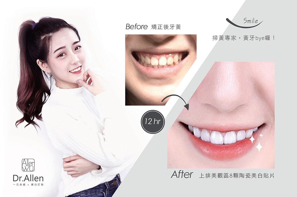 瓷牙貼片-矯正後牙齒美白-陶瓷貼片前後比較-吳國綸醫師-台中