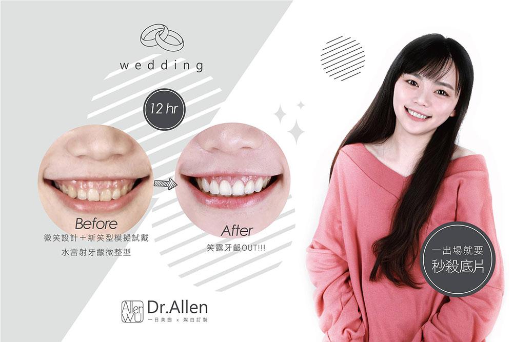 瓷牙貼片-笑露牙齦-牙齦整形-陶瓷貼片前後比較-吳國綸醫師-台中