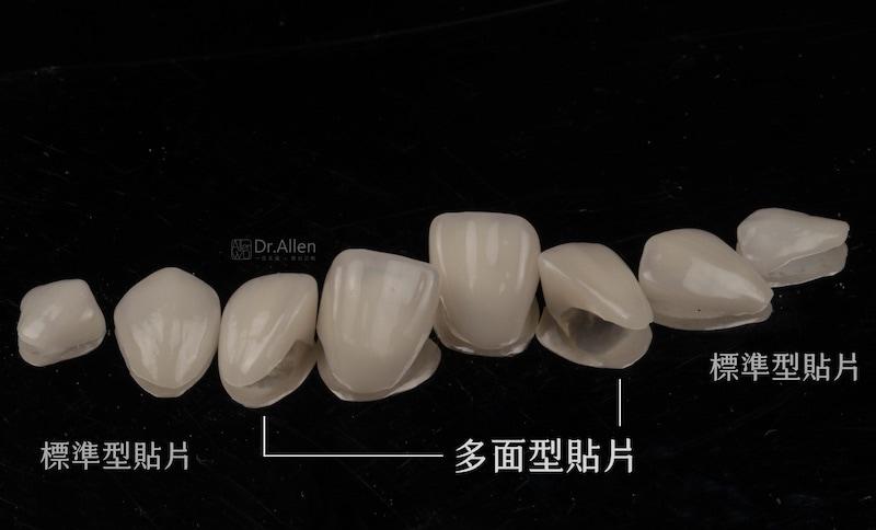 陶瓷貼片-全瓷冠-多面型貼片-台中-吳國綸醫師