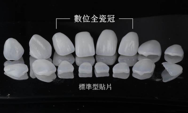 陶瓷貼片-全瓷冠-數位全瓷冠-台中-吳國綸醫師