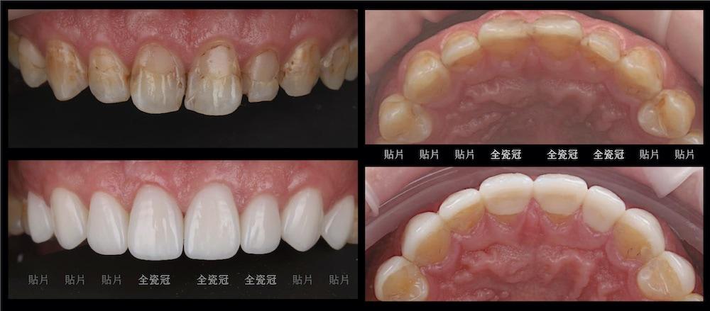 陶瓷貼片-全瓷冠-牙齒矯正-蛀牙-牙齒黃-治療前後比較-台中-吳國綸醫師