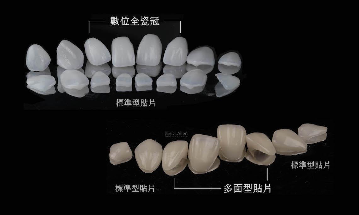 陶瓷貼片-全瓷冠-牙齒矯正-蛀牙-牙齒黃-牙齒美白推薦-台中-吳國綸醫師