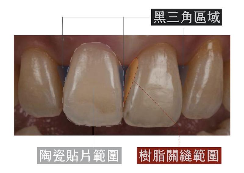陶瓷貼片-牙縫黑三角-樹脂填補與陶瓷貼片範圍比較-台中-吳國綸醫師