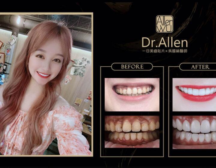 陶瓷貼片-矯正牙齒變黃-牙縫黑三角-牙齒美白推薦-台中-吳國綸醫師