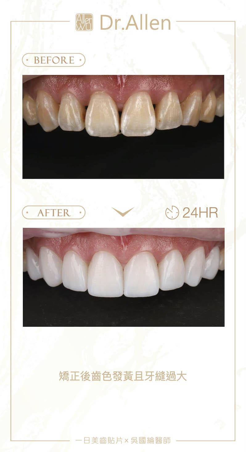 陶瓷貼片-矯正牙齒變黃-牙縫黑三角-陶瓷貼片前後對比-2-台中-吳國綸醫師