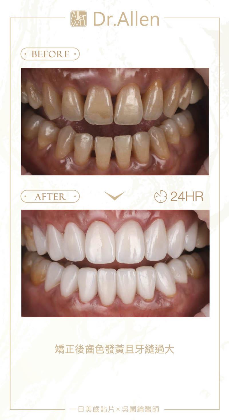 陶瓷貼片-矯正牙齒變黃-牙縫黑三角-陶瓷貼片前後比較-1-台中-吳國綸醫師拷貝