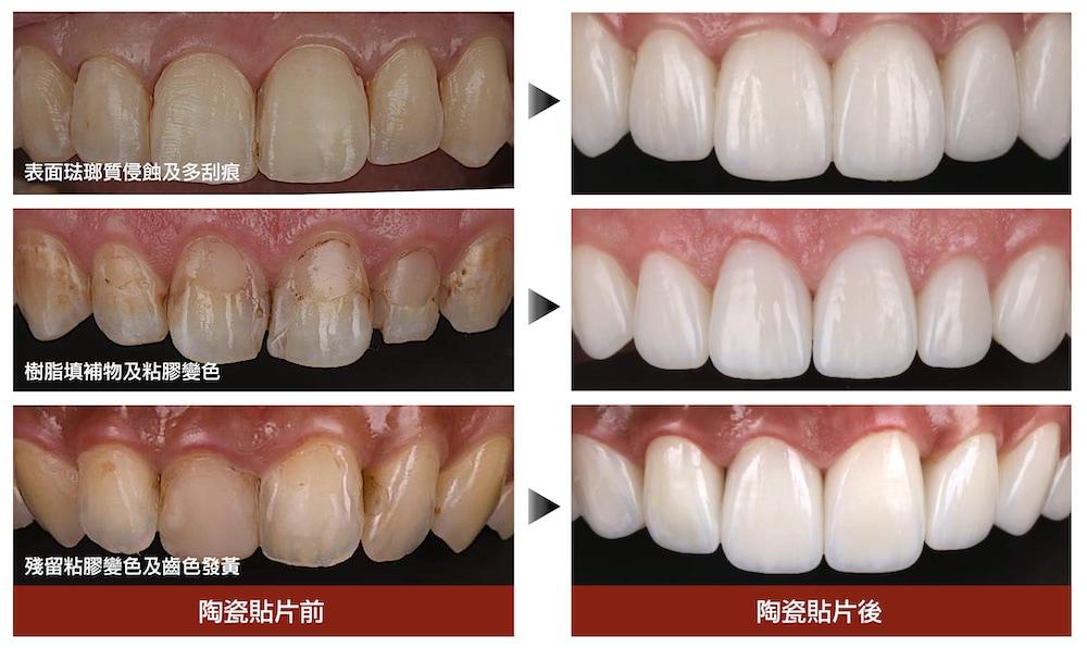 陶瓷貼片-矯正牙齒變黃-陶瓷貼片前後比較-台中-吳國綸醫師