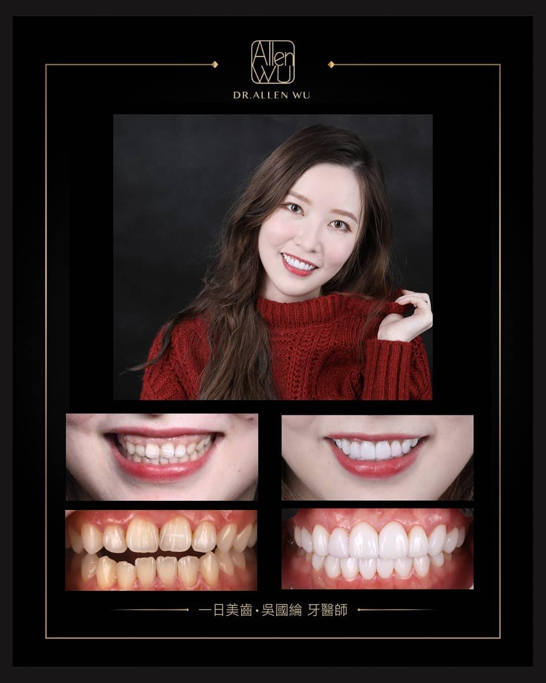 陶瓷貼片-一日美齒-完美微笑曲線牙齒-療程前後比較-吳國綸醫師-台中