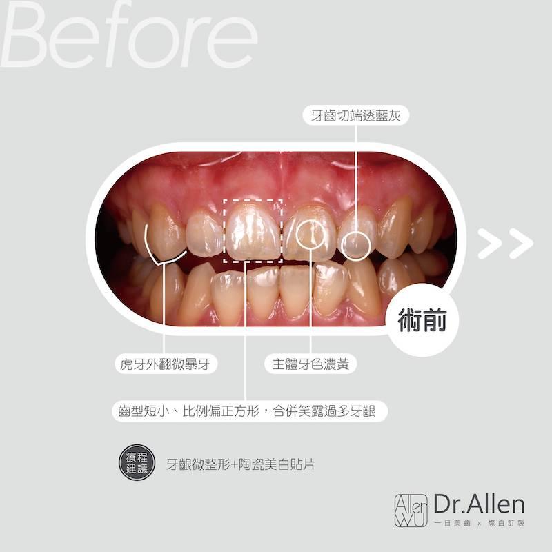 陶瓷貼片-牙齒黃-輕微暴牙-笑露牙齦-陶瓷貼片療程前-吳國綸醫師-台中
