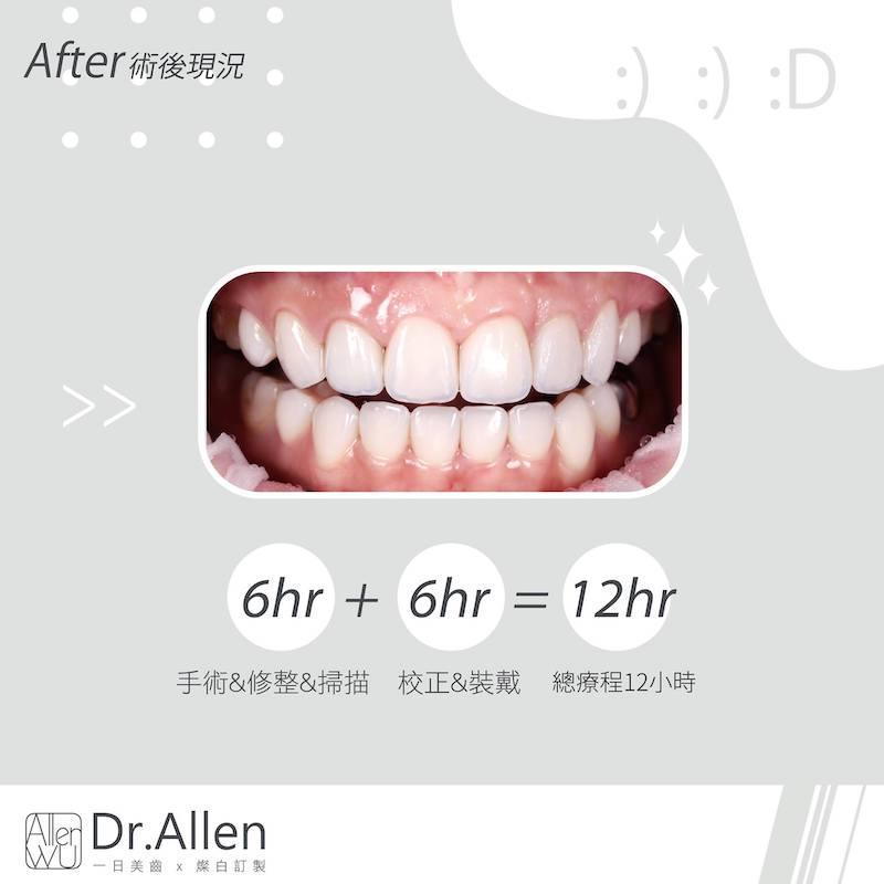 陶瓷貼片-矯正牙齒變黃-牙齒小-牙齒變色-陶瓷貼片療程後-吳國綸醫師-台中