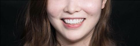 陶瓷貼片-DSD微笑設計模擬試戴笑容-微笑設計版本一-Oval Shape橢圓形設計-吳國綸醫師-台中
