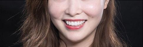 陶瓷貼片-DSD微笑設計模擬試戴笑容-微笑設計版本二-增強虎牙強化年輕形象-吳國綸醫師-台中