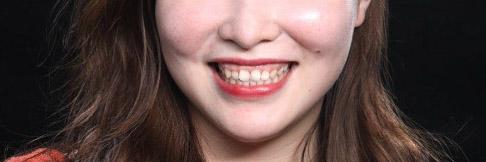 陶瓷貼片-DSD微笑設計- 設計前-原齒型與臉型-吳國綸醫師-台中