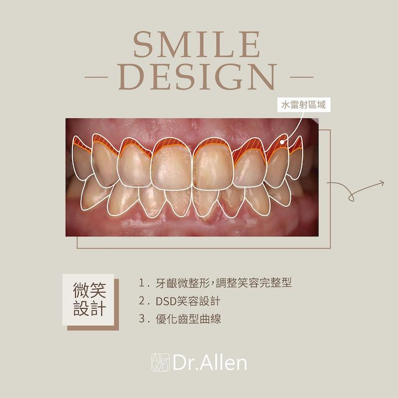 陶瓷貼片-牙齒小顆-水雷射-牙齦整形手術-調整牙齒形狀-治療中-吳國綸醫師-台中