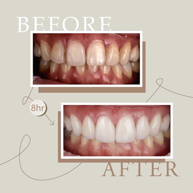 陶瓷貼片-牙齒黃-樹脂補門牙-門牙變色-治療前後對比-吳國綸醫師-台中