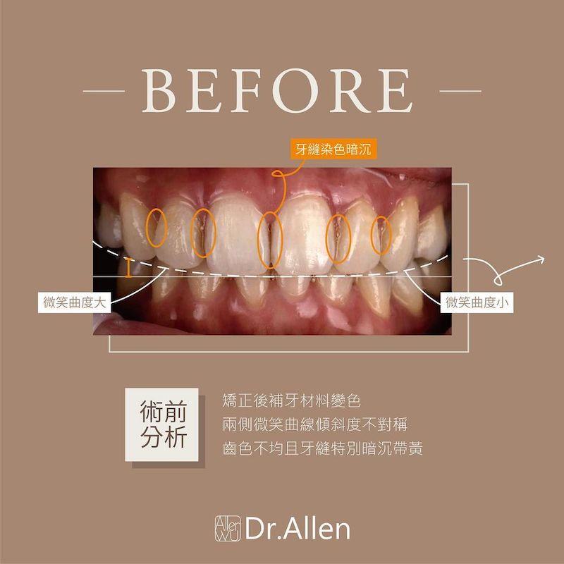 陶瓷貼片-牙齒黃-樹脂補門牙-門牙變色-治療前-吳國綸醫師-台中