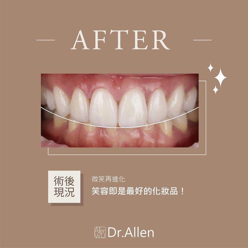 陶瓷貼片-牙齒黃-樹脂補門牙-門牙變色-治療後-吳國綸醫師-台中