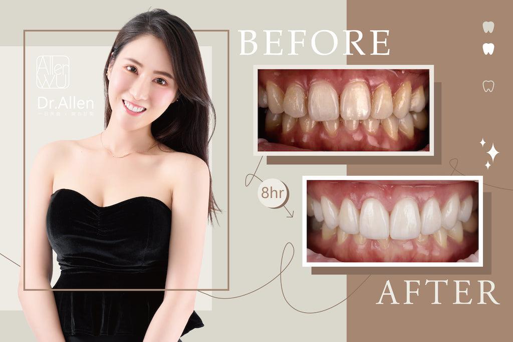 陶瓷貼片-牙齒黃-樹脂補門牙-門牙變色-牙齒美白推薦-吳國綸醫師