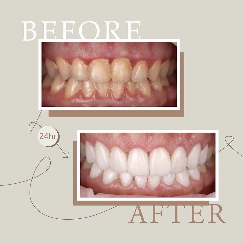 陶瓷貼片-牙齒黃-牙齒小顆-水雷射-牙齦整形手術-治療前後對比-吳國綸醫師-台中