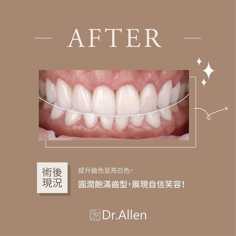 陶瓷貼片-牙齒黃-牙齒小顆-水雷射-牙齦整形手術-治療後-吳國綸醫師-台中