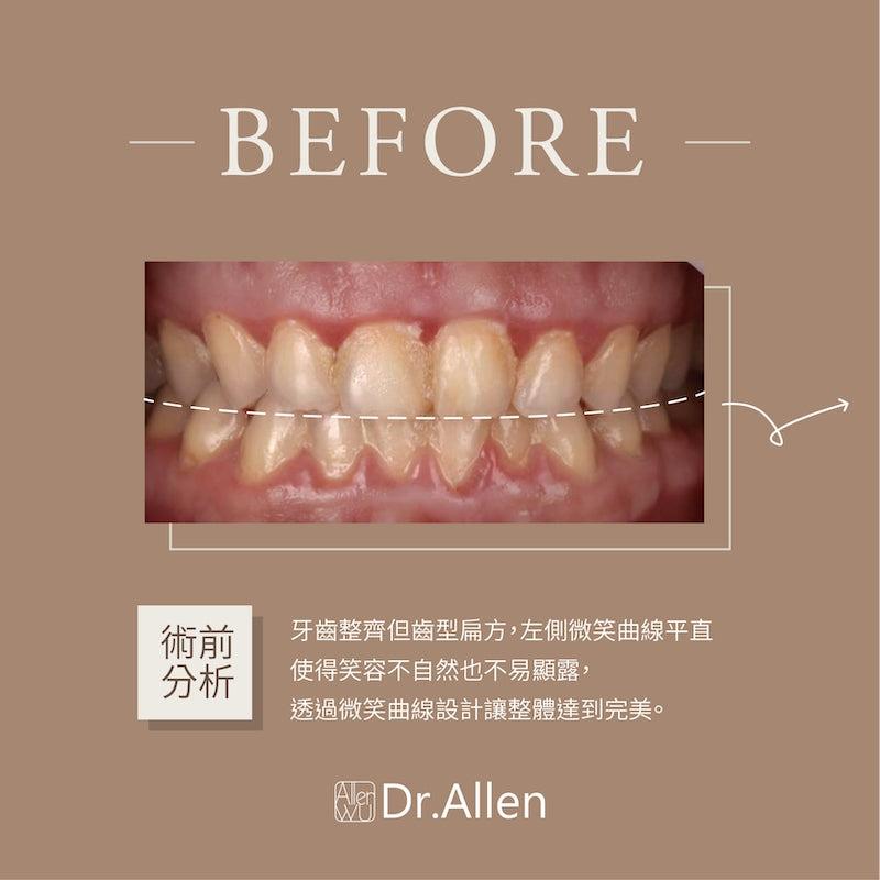 陶瓷貼片-牙齒黃-牙齒小顆-治療前-吳國綸醫師-台中