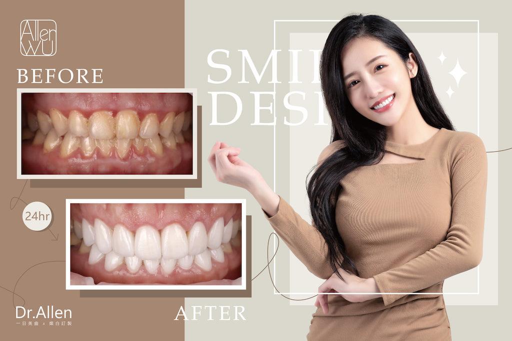 陶瓷貼片-牙齒黃-牙齒小顆-牙齦整形-微笑設計-吳國綸醫師